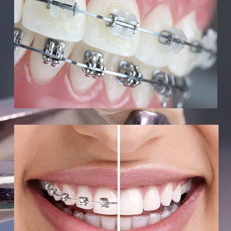 ortodoncja-mkdent